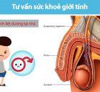 Cách trị bệnh liệt dương tại nhà